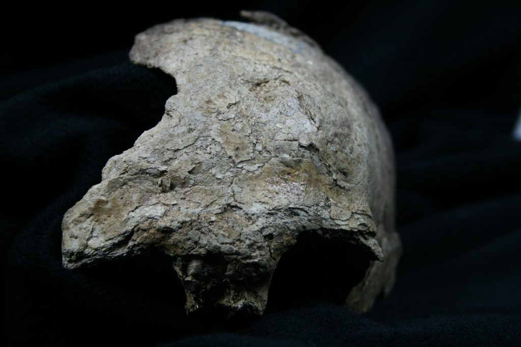 A photograph showing a fragment of human skull