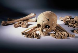 A photograph of a human skull surrounded by bones
